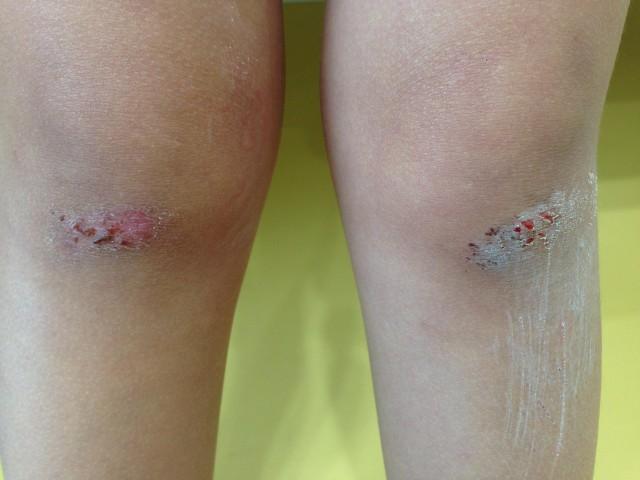 擦り傷の治療1